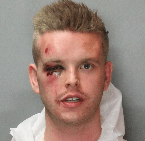 Probationary Deputy Arrested Then Fired Following Shooting at Party