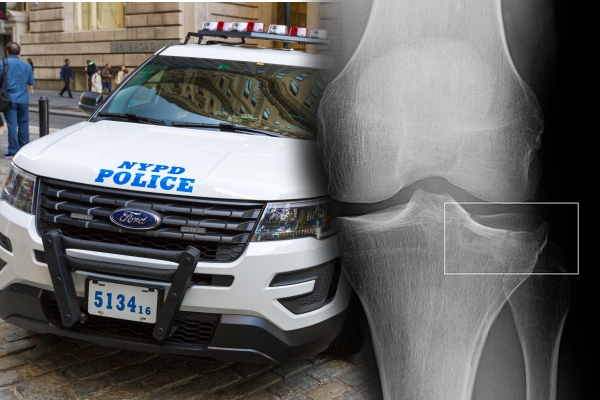 Thief Escapes By Breaking NYPD Officer's Leg