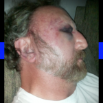 A stranger tried to kill me and it changed my life forever: an officer's story