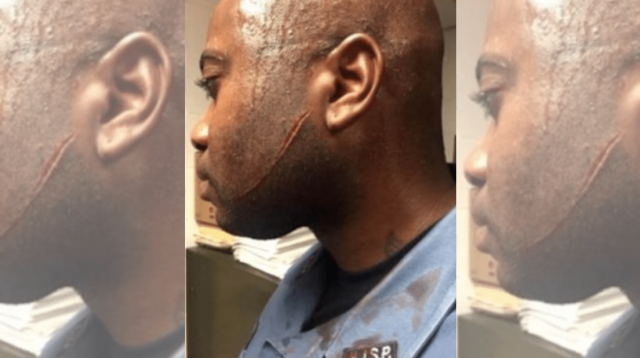 PBA: Officer gets attacked – now the state refuses to pay him while he recovers