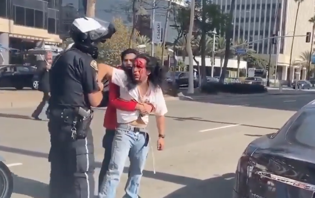 Man bleeding and arrested