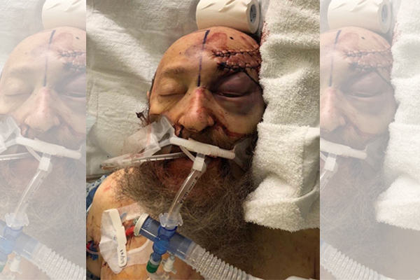 "Victim of New York hate crime fighting for his life after Hanukkah attack - ""Might never wake up"""