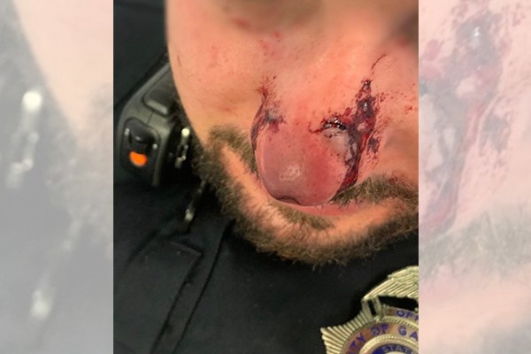 Officers respond to gunshot victim come under attack - get punched, kicked, and bitten