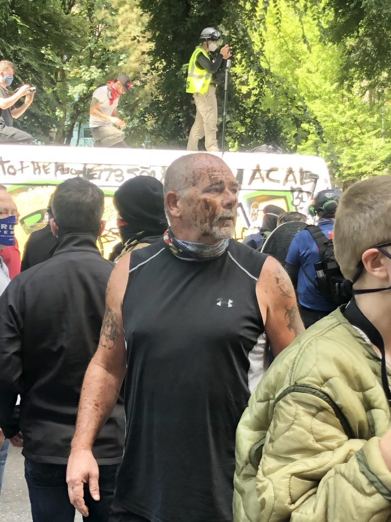 Police attacked with balloons filled with feces, black pro-police speaker soaked with urine, Antifa launches attacks