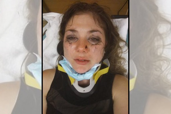 Horror as woman brutally beaten by random strangers: 'I don't think I'm gonna make it through this'