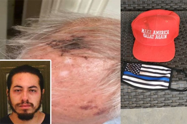 Military veteran, 77, brutally beat wearing Thin Blue Line mask and pro-Trump hat
