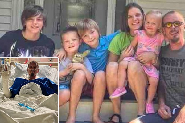 Hero status: Father severely burned trying to rescue young kids inside burning home