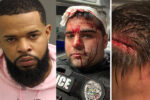 No hate crime charges?  Orlando officers brutally attacked while breaking up downtown bar fight