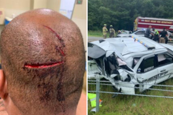 Deputy severely injured in on-duty crash gets fired shortly after sheriff learns he intends to run for office
