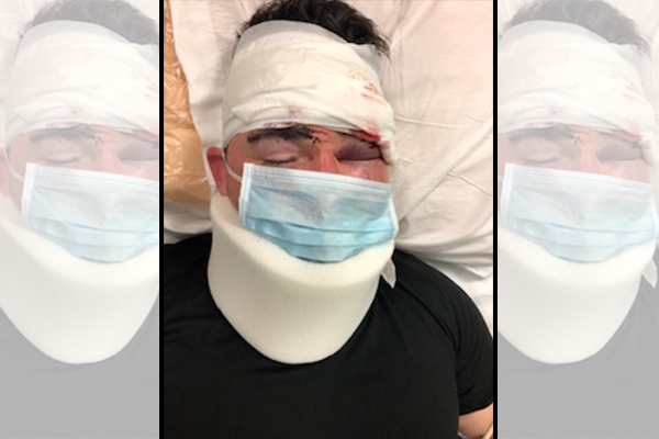 As California continues to release criminals, sheriff's deputy barely survives brutal attack by multiple inmates