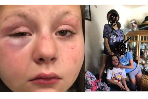 Two teens arrested in brutal beating of girl, 10, who they lured to home by pretending they wanted to play