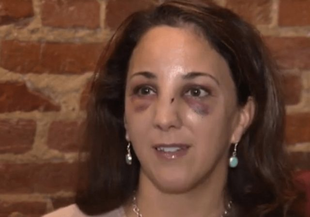 Baltimore Woman Severely Beaten by Pack of Marauding Teens
