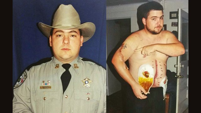 Shot Multiple Times and Left to Die – Profiles in Courage Retired Deputy Bobby Dupree.